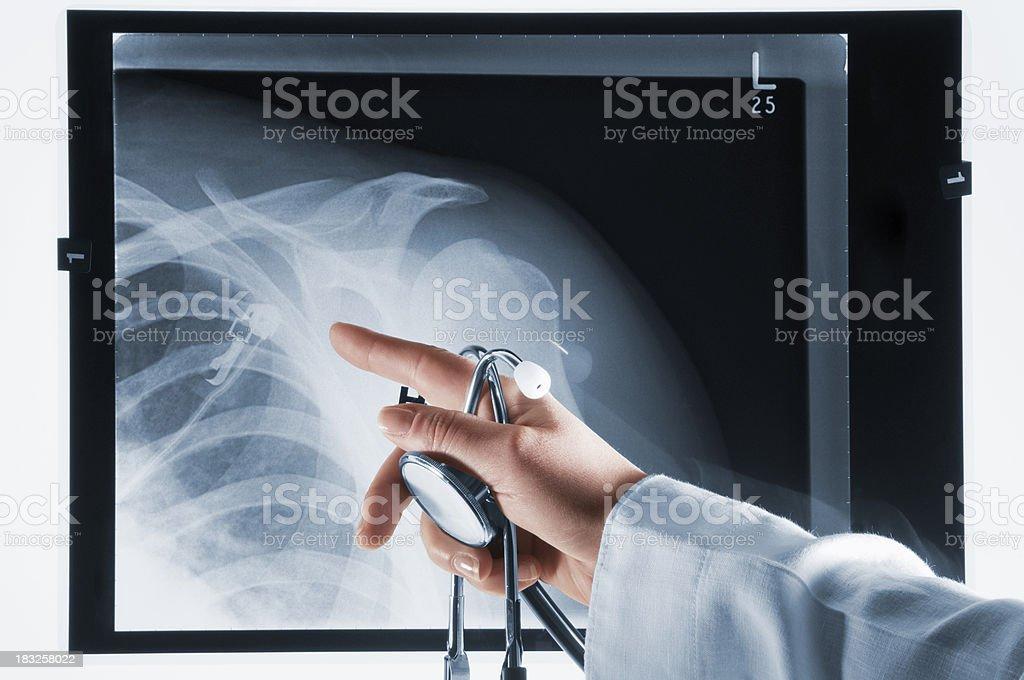 Arzt zeigt auf Xray mit Stethoskop in der hand - Lizenzfrei Akademisches Lernen Stock-Foto