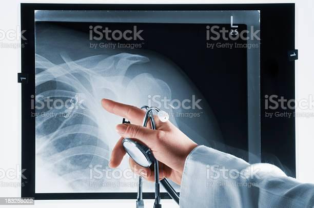 Arzt Zeigt Auf Xray Mit Stethoskop In Der Hand Stockfoto und mehr Bilder von Akademisches Lernen