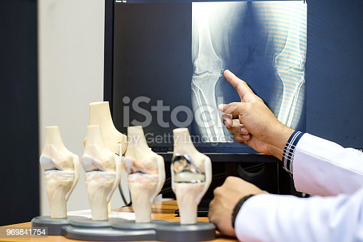 Doctor pointing on the knee problem point on x-ray film. x-ray film show skeleton knee on film. Surgery medical technology concept. Osteoarthritis in the elderly.
