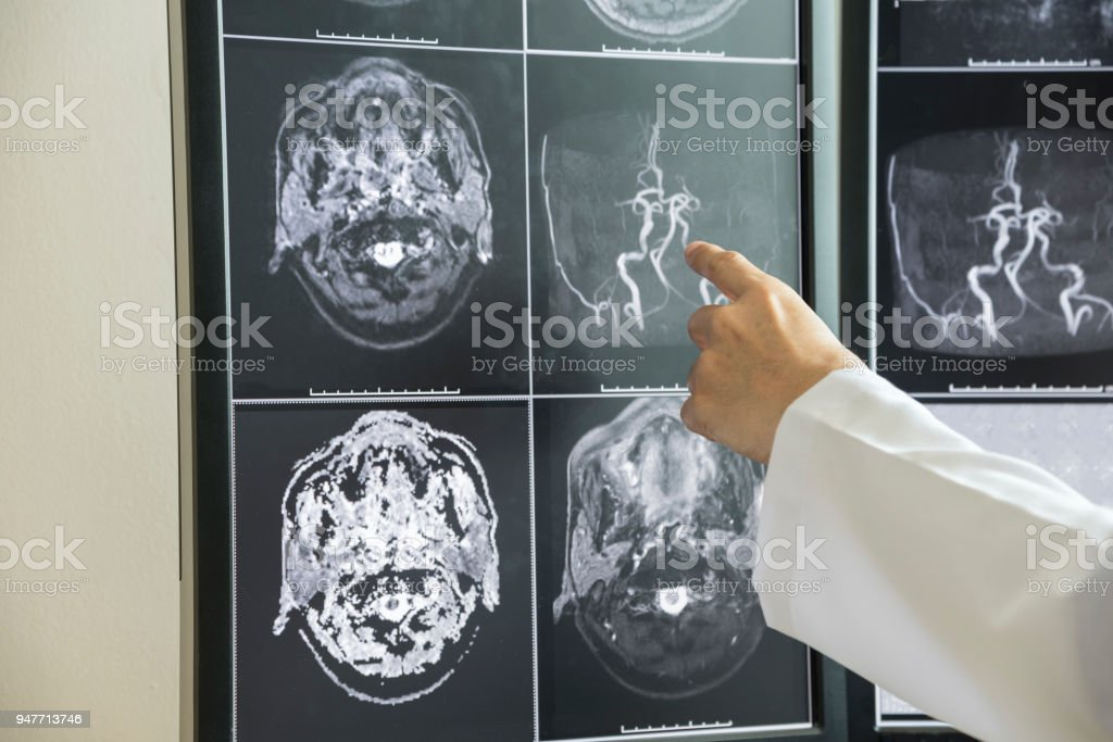 Doctor Pointing To Brain Anatomy On Mri Image Stock Photo More