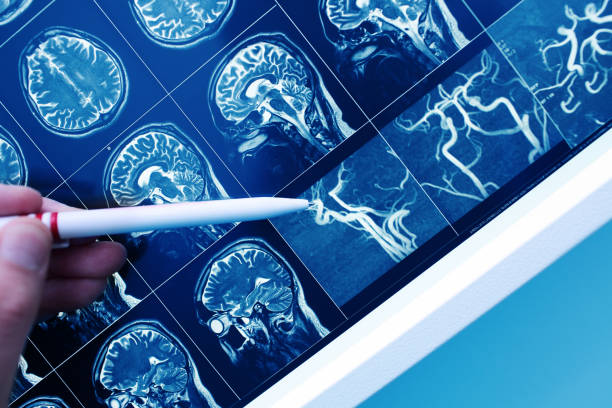 Doctor pointing with pen to the brain blood vessel on the MRI image stock photo