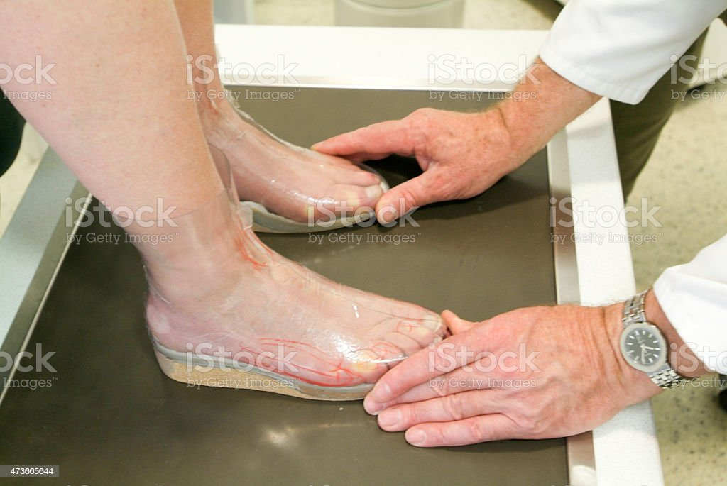 Doctor preparing orthopedic insoles for a patient stock photo