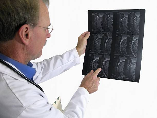 Doctor Reading MRI Results stock photo