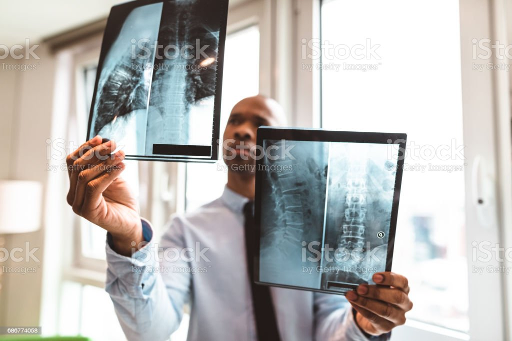 doctor reading the x-ray in the office stock photo