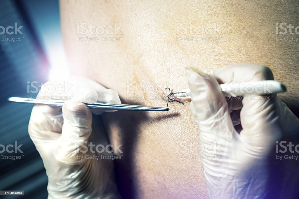 Doctor remove stitches from the back patient stock photo