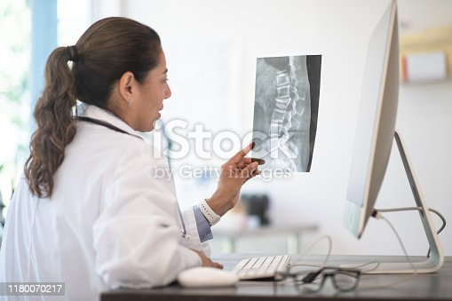 A Doctor reviewing her patients x-ray results for possibly breaks, fractures and abnormalities