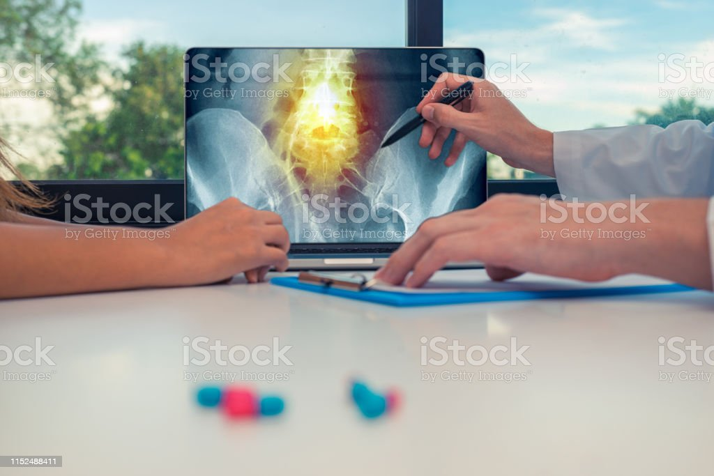Doctor showing a x-ray of hips and pain in the spine on a laptop to a...