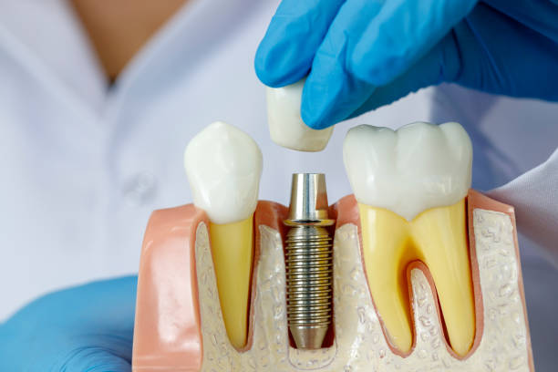 doctor showing dental implant - dental implants stock photos and pictures