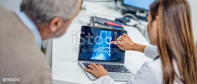 istock Doctor showing patient his bone reconstruction 927623242