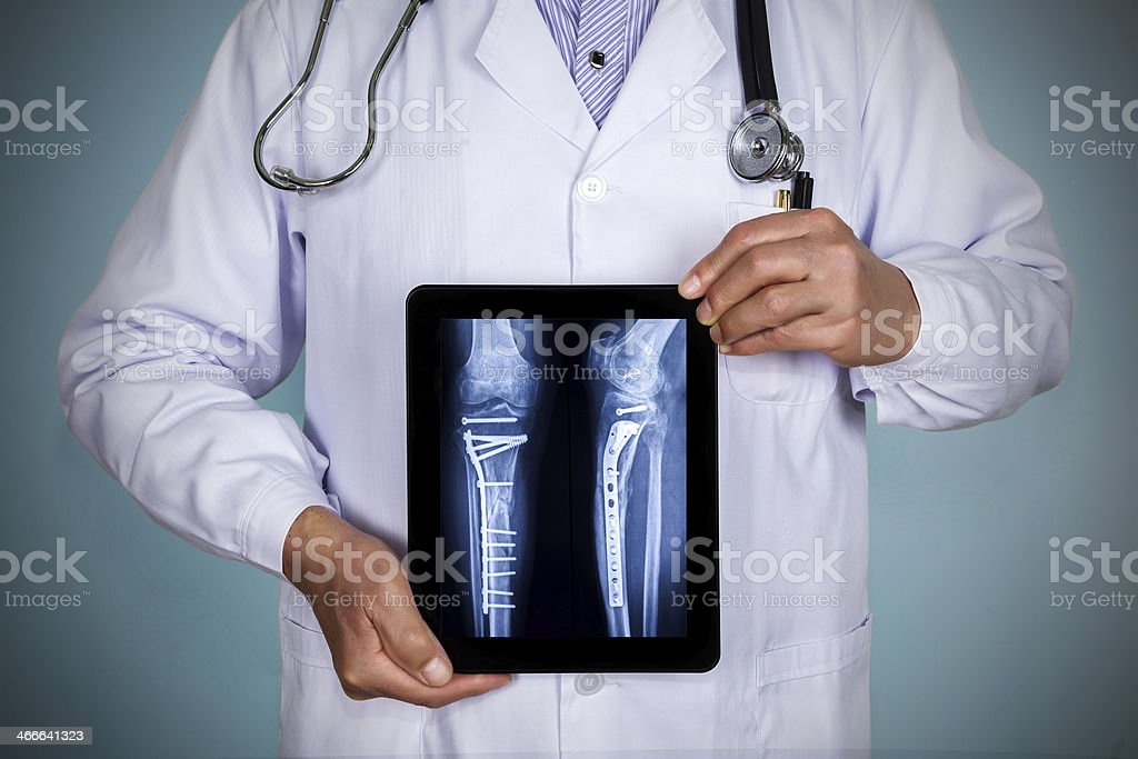 doctor showing xray on digital tablet stock photo