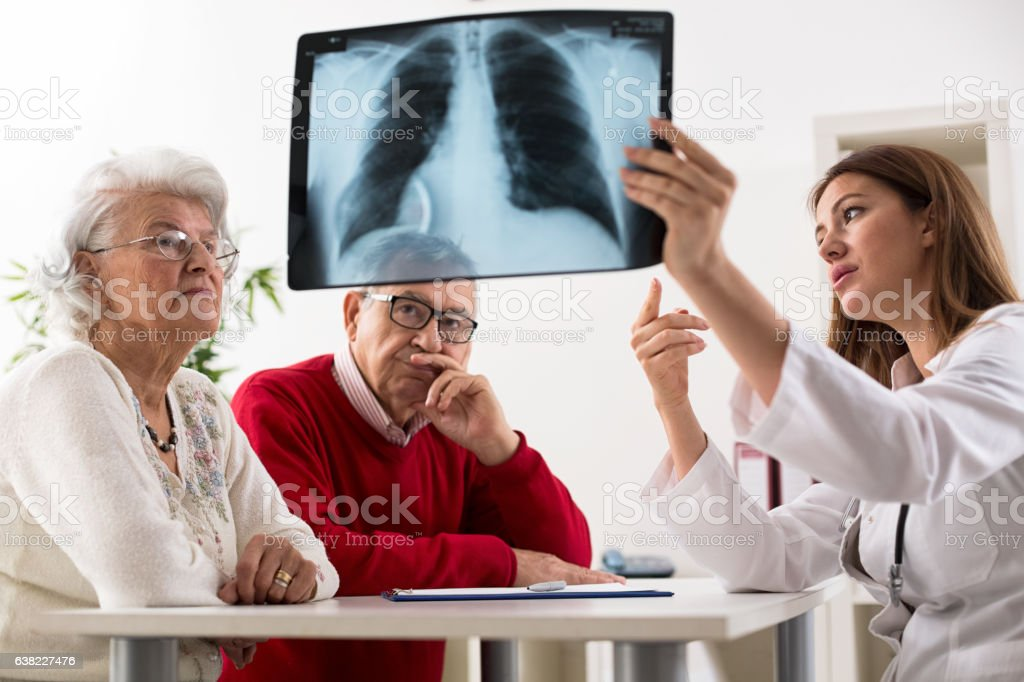 Doctor shows results to old patient x-ray of the lungs stock photo