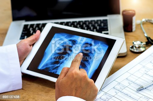 871683804istockphoto Doctor shows results to patient x-ray 695137438
