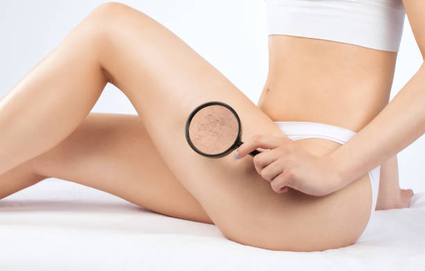 doctor shows  the dilation of small blood vessels of the skin on the leg. Medical inspection and treatment of Telangiectasia. Phlebeurysm. stock photo