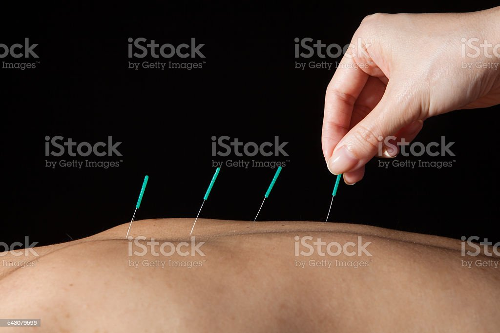 Doctor stabbed acupuncture in the body of the patient stock photo