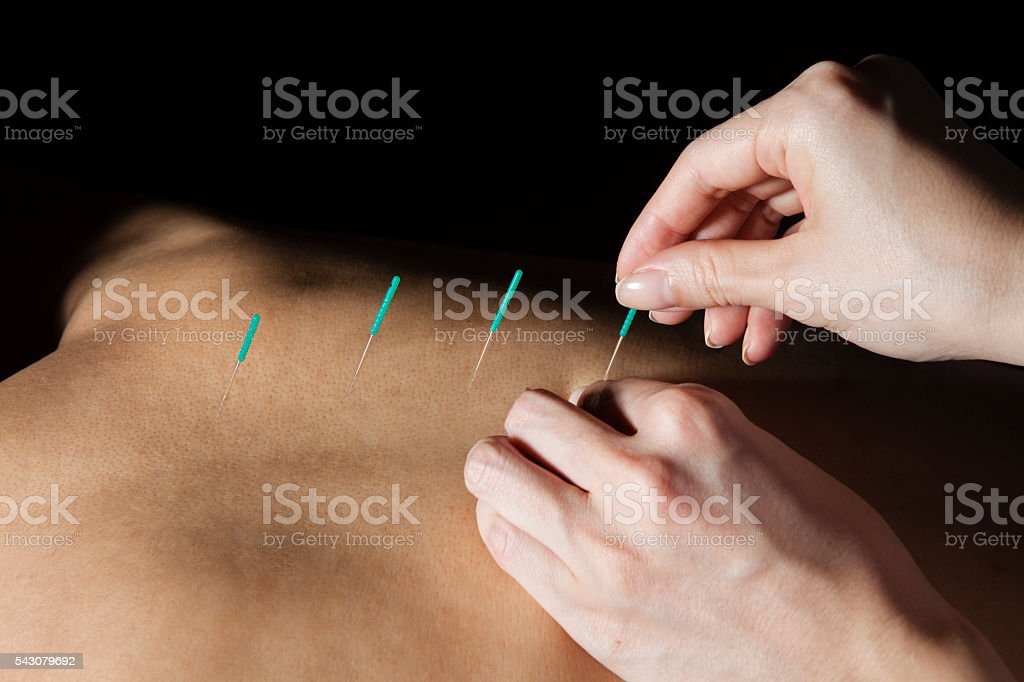 Doctor stabbed acupuncture on the back of the patient stock photo