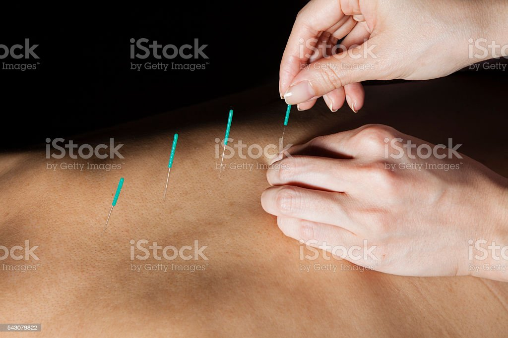 Doctor stabbed acupuncture on the back of woman stock photo