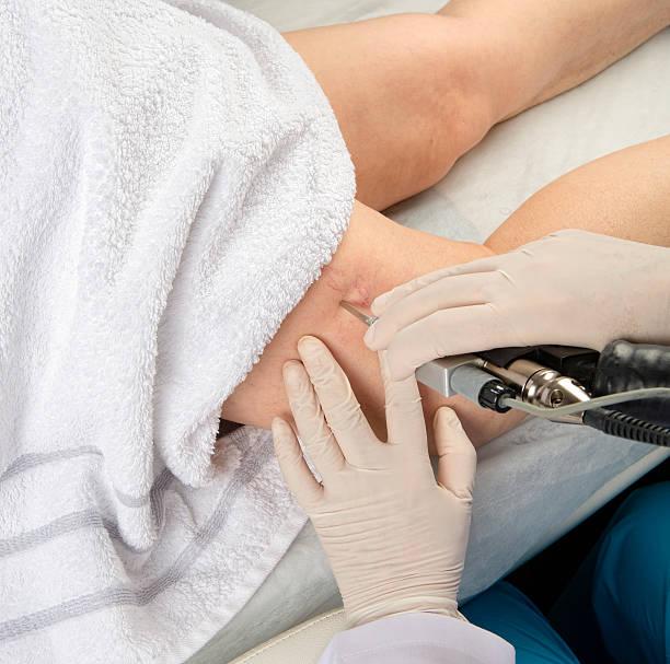 stocuri de stocuri foto de la varicoză pe picioare