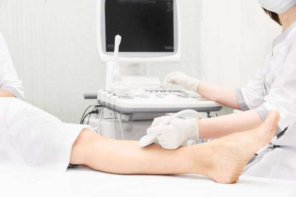 doctor echografie knietest. scan medische apparatuur. diagnose echografie voet. varicose enkel examen tool - bloedvat stockfoto's en -beelden