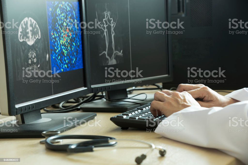 Doctor using computer to analyze MRI brain picture in radiology room...