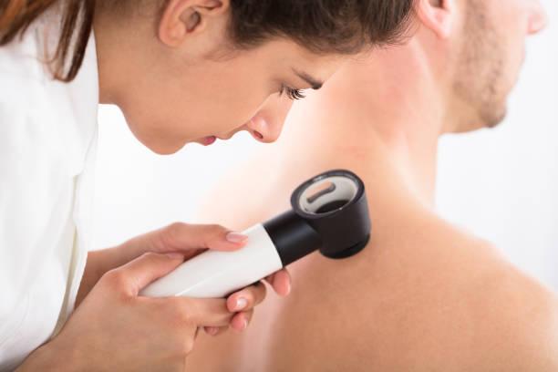 médecin à l'aide de dermatoscope pour l'examen de la peau - dermatologie photos et images de collection