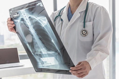 istock Doctor with radiological chest x-ray film for medical diagnosis on patient's health on asthma, lung disease and bone cancer illness 1137042463