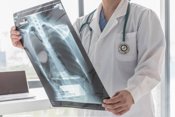 doctor with radiological chest x-ray film for medical diagnosis on patient's health on asthma, lung disease and bone cancer illness - medical x ray stock pictures, royalty-free photos & images