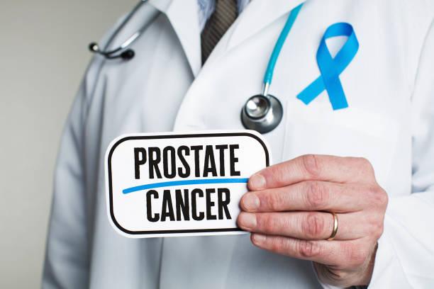 arts met de stethoscoop in witte laboratoriumjas holding teken lezen van prostaatkanker - prostaatkanker stockfoto's en -beelden