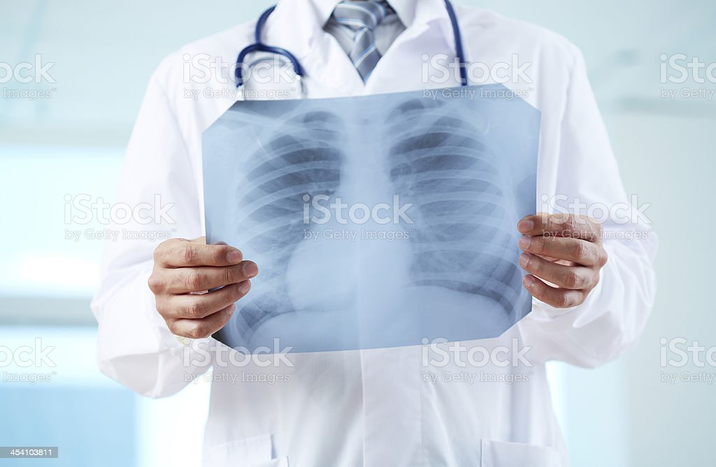 Doctor with x-ray royalty-free stock photo