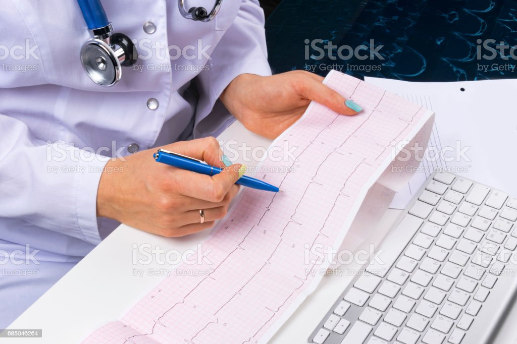 Doctor workplace. Electrocardiogram, ecg in hand of a female doctor with ekg graph paper in hospital office room with computer, concept of medical healthcare stock photo
