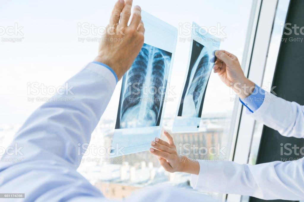 Doctors discuss x-ray stock photo