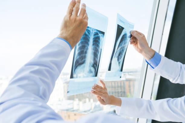 ärzte diskutieren röntgen - wissenschaftliche bildtechnik stock-fotos und bilder