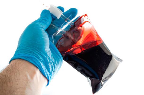 des arztes hand hält ein transfusionsständern - spenden sammeln stock-fotos und bilder