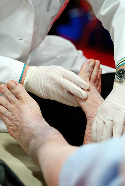 doctor's hands touching diabetic patient's foot - podiatry stock pictures, royalty-free photos & images