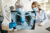 istock Doctors looking at lungs x-ray 1223774237