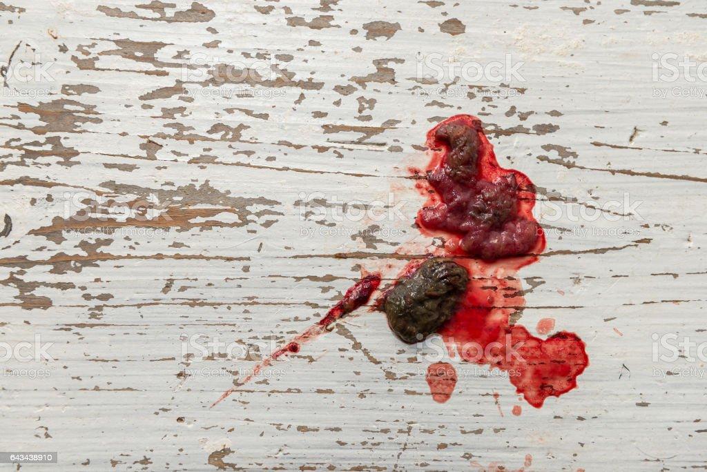 Darmentzündung Blut