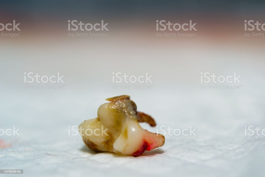 Dog Tooth Extracted Stock Photo Download Image Now Istock