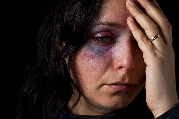 la violencia doméstica víctima - violencia de genero fotografías e imágenes de stock