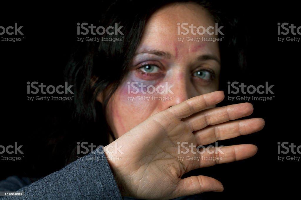 Domestic violence victim stock photo