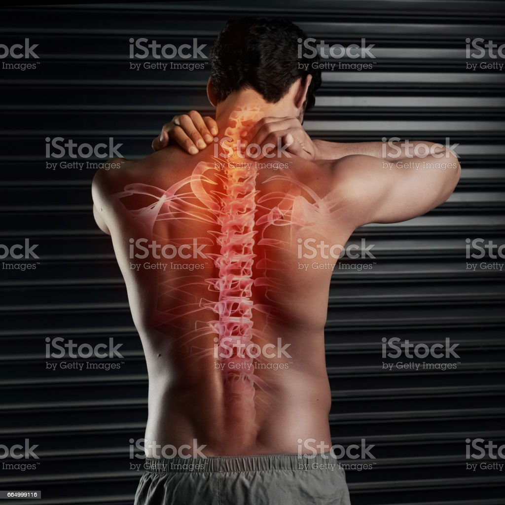 Don't risk a spinal injury stock photo