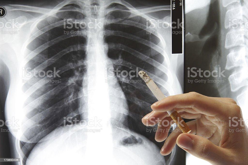 Dont smoke royalty-free stock photo