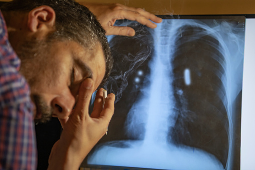 Smokers in front of the x ray image