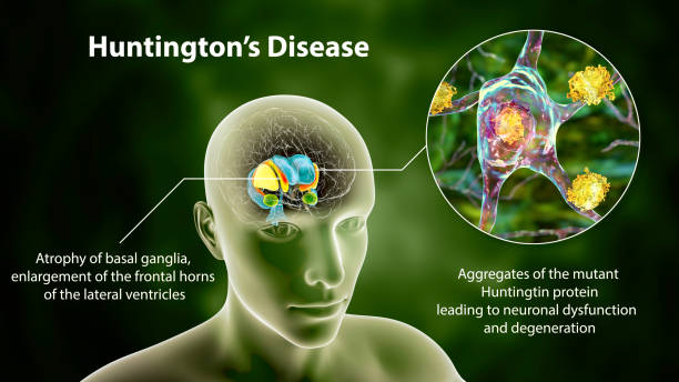 Dorsal striatum and lateral ventricles in the brain of a person with Huntington's disease, 3D illustration stock photo