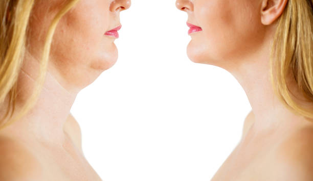 Double chin fat or dewlap correction, before and after stock photo