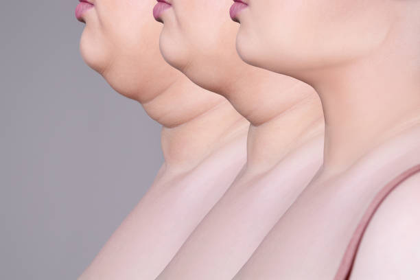Double chin, skin rejuvenation on the neck, before after anti aging concept stock photo