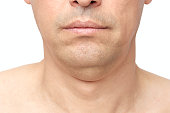 istock double fat chin 1200158434