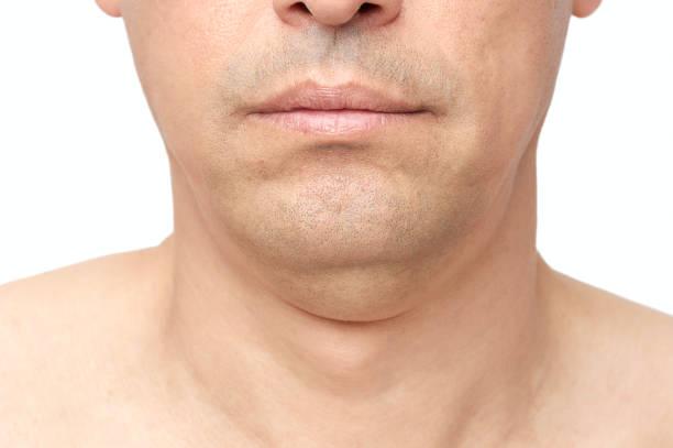 double fat chin stock photo