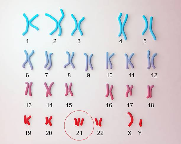 Down-syndrome karyotype - foto de stock