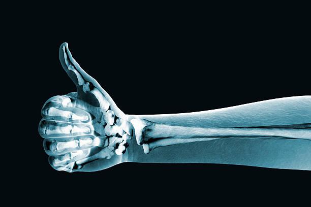 dramatized x ray de uma mão os polegares para cima - ortopedia - fotografias e filmes do acervo
