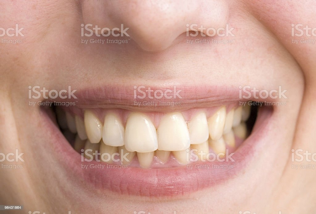 Sogno di dentista foto stock royalty-free