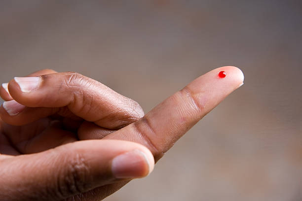 Drop of blood on fingertip for a medical exam stock photo